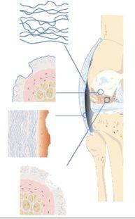 Arthrose vor der Behandlung